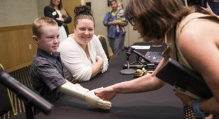 """""""I can now climb trees"""": 6yo kid gets prosthetic arm from 3D printer"""