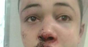"""US """"profoundly troubled"""" by brutal beating of Palestinian teen who turned out to be American"""