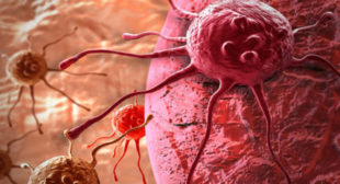 Russian Doctors Create High-Tech Drug With Amazing Cancer-Killing Properties